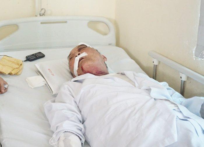 Tài xế xe ôm khai đánh cựu binh 80 tuổi rạn xương sườn, chấn thương nặng vì... khó chịu - Hình 2