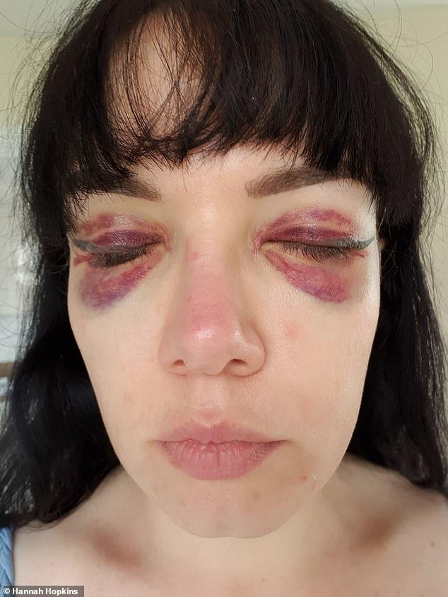 Để tiết kiệm thời gian trang điểm, người phụ nữ quyết định đi xăm mí nhưng nhận về kết quả đau thương - Hình 2