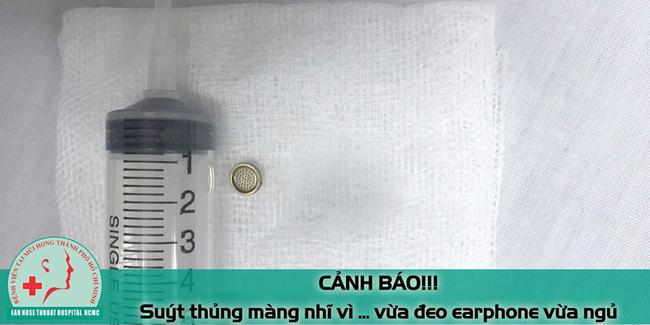 Huy hữu: Bệnh nhân nam suýt thủng màng nhĩ vì đeo tai nghe nghe nhạc khi ngủ - Hình 2