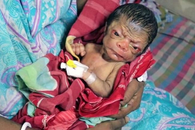 Cả ê-kíp bác sĩ đỡ đẻ choáng váng khi em bé chào đời trong hình hài của một ông lão 80 tuổi - Hình 4