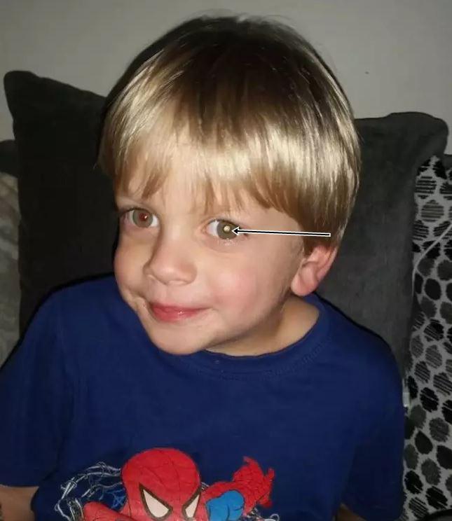Nhờ dấu hiệu lạ trong tấm ảnh chụp con trai, cha mẹ đau đớn khi biết điều khủng khiếp sắp xảy đến với bé - Hình 1