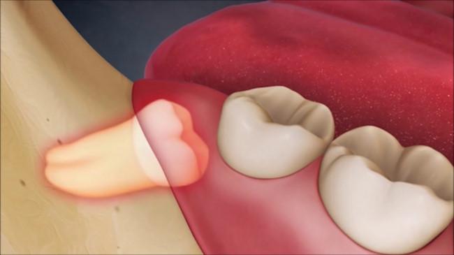 Răng số 8 biến chứng có thể là vấn đề của ... ung thư - Hình 1