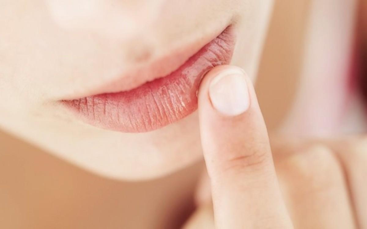 10 nguyên nhân khiến đôi môi nứt nẻ - Hình 2