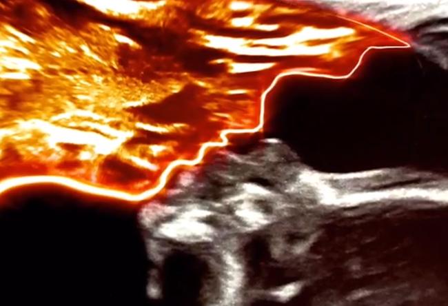 Vừa khoe ảnh siêu âm thai, bà mẹ giật mình khi nhận được câu hỏi: Ai đang hôn bé kia? - Hình 2