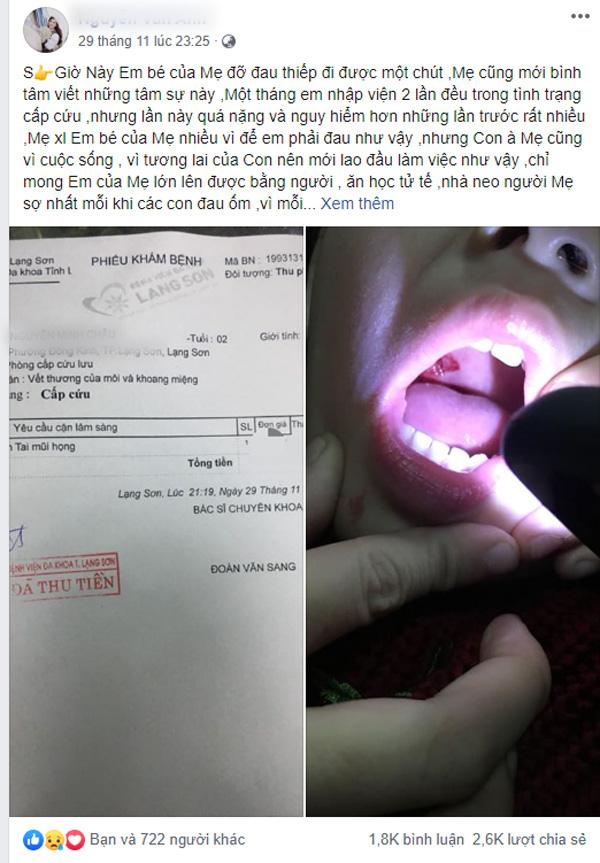Sạc điện thoại xong không rút điện, bé 2 tuổi ngậm đầu sạc bị giật rách khoang miệng, tổn thương amidan - Hình 1