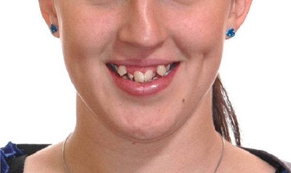 Dự đoán vận mệnh sướng hay khổ của đời người qua hàm răng - Hình 1