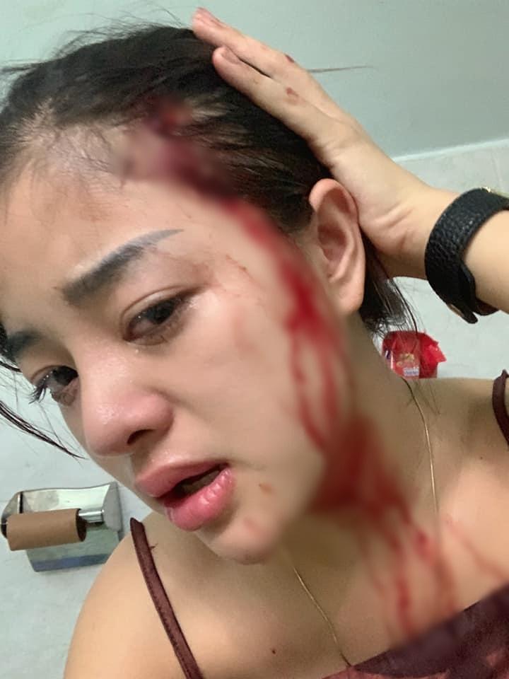 Tình trẻ của Huấn Hoa Hồng bị đánh đập dã man: 'Trách mình mù quáng và ngu' - Hình 6