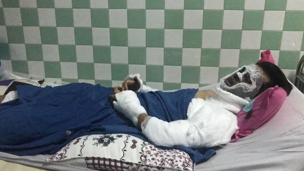 Việt kiều bị tạt axit, cắt gân chân : Chưa tìm ra thủ phạm, nạn nhân sống trong sợ hãi - Hình 1