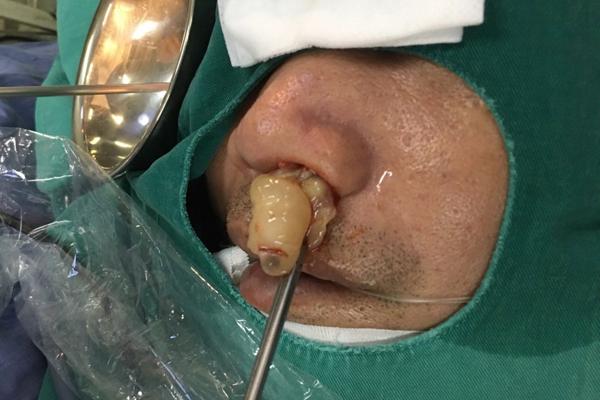 10 năm điếc ngửi, bác sĩ lôi ra thủ phạm chình ình trong mũi - Hình 1