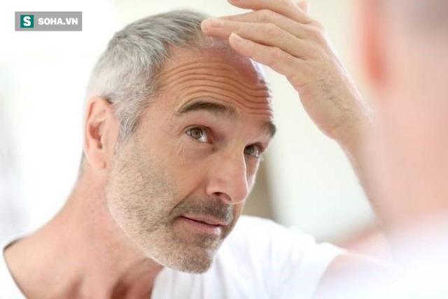 5 dấu hiệu cảnh báo nam giới bước vào giai đoạn lão hóa tăng tốc: Hãy sớm ngăn chặn - Hình 1