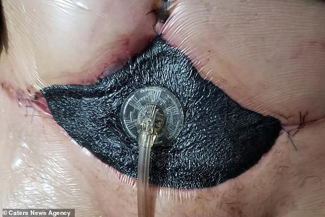 Bỏ ra gần 100 triệu để đi hút mỡ, người phụ nữ gặp biến chứng khiến da bụng bị thối đen - Hình 5