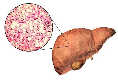 Những dấu hiệu sớm tố bạn đã bị gan nhiễm mỡ - Hình 1