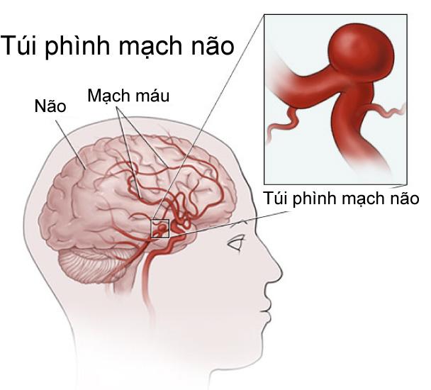 7 cách phát hiện chứng phình động mạch não trước khi quá muộn (P1) - Hình 1