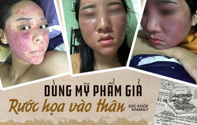 Ham rẻ, dùng phải mỹ phẩm giả đội lốt hàng xách tay nhiều chị em bị hủy hoại biến dạng gương mặt kinh hoàng - Hình 1