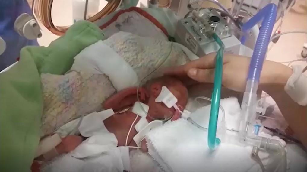 Em bé sinh non 14 tuần, nặng chưa đầy 0,5kg và hành trình sống sót kỳ diệu lấy đi nước mắt của hàng triệu người - Hình 2