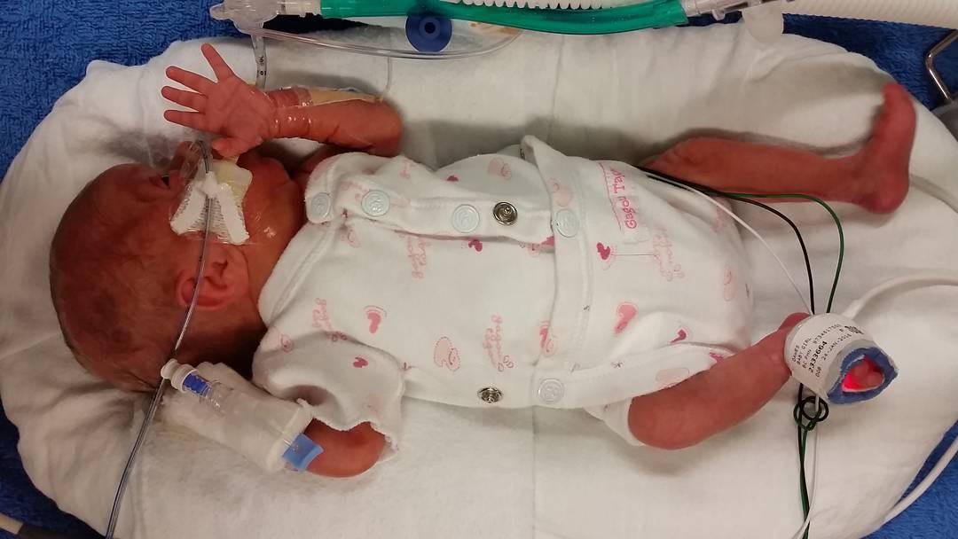 Em bé sinh non 14 tuần, nặng chưa đầy 0,5kg và hành trình sống sót kỳ diệu lấy đi nước mắt của hàng triệu người - Hình 5