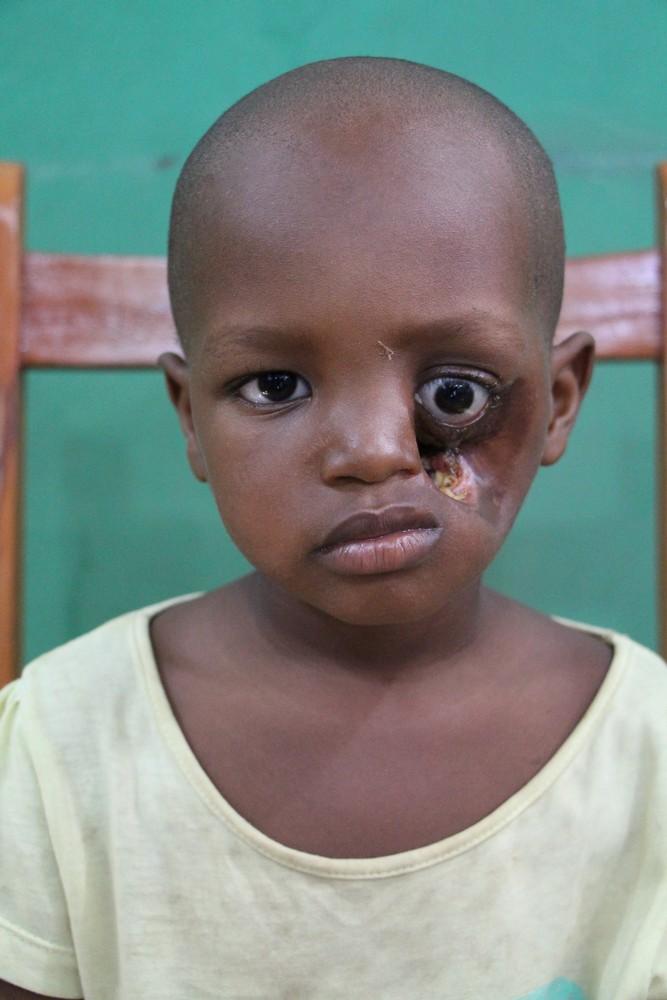 Noma - Căn bệnh kinh hoàng nhất thế giới, chỉ có 15% trẻ em sống sót sau cơn đau cấp tính - Hình 3