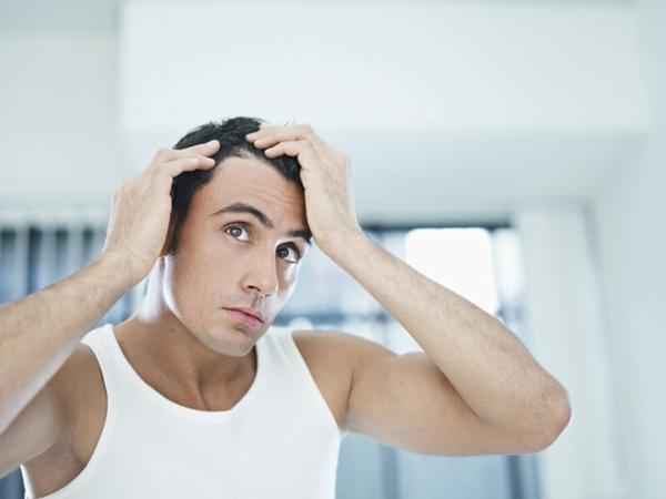 Nam giới cần phân biệt gàu và khô da đầu: Chàng đừng nhầm lẫn! - Hình 3