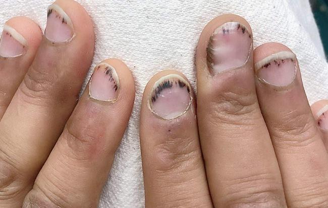 Dấu hiệu bất thường ở móng tay cảnh báo bệnh viêm van tim ít ai biết - Hình 1