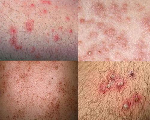 Giải pháp nào cho viêm nang lông và da khô? - Hình 1