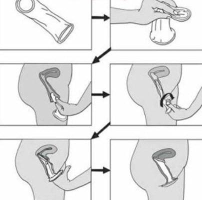 Hướng dẫn sử dụng bao cao su cho nam và nữ - Hình 2