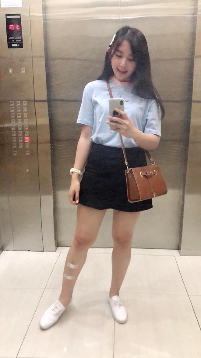 Giảm liền tù tì 30kg trong một năm, cô gái mũm mĩm hoá girl xinh khiến bạn bè không nhận ra - Hình 16