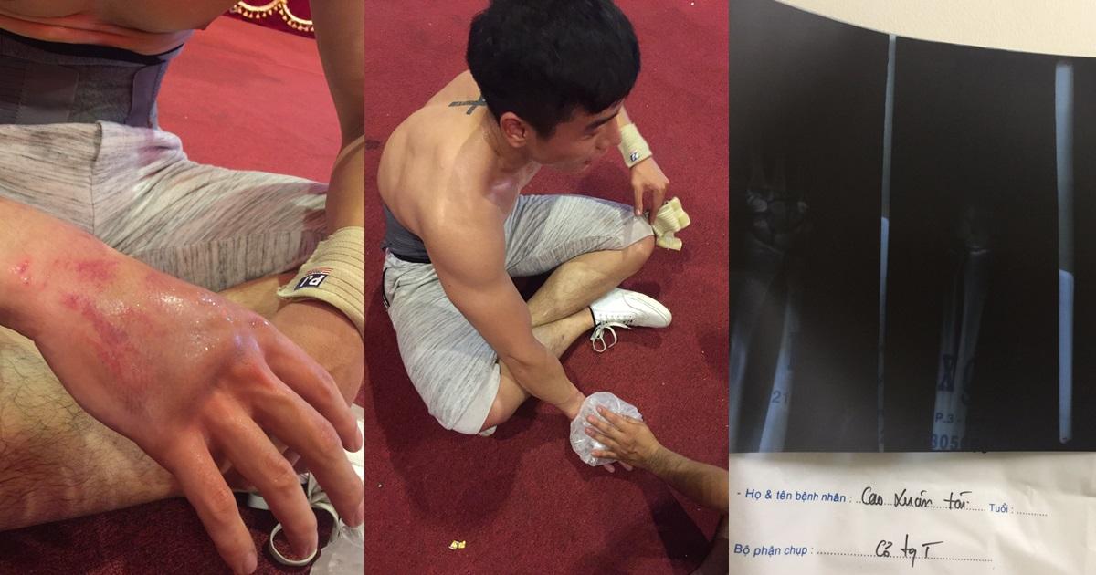 Nam vương Cao Xuân Tài gặp tai nạn phải nhập viện khi đang tập luyện - Hình 10