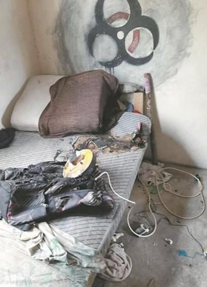 Ngủ gật khi đang sử dụng điện thoại, thanh niên bị bỏng nặng ở ngực và cổ phải nhập viện khẩn cấp - Hình 2
