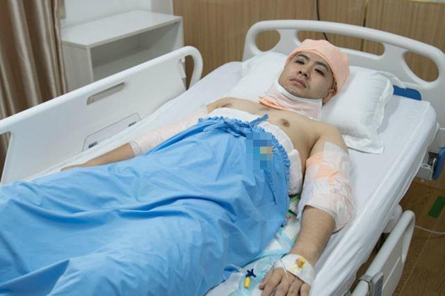Bất lực vì cân nặng, Akira Phan quyết chi 300 triệu phẫu thuật nhưng kết quả thì... - Hình 3