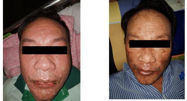 Dị ứng thuốc trị gout, bệnh nhân có khuôn mặt đầy bọng nước, trợt da 60% diện tích cơ thể - Hình 1