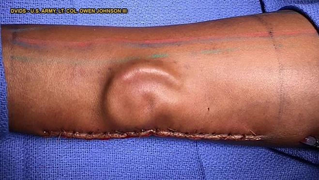 Người lính được bác sĩ cấy chiếc tai mới vào cánh tay - Hình 1