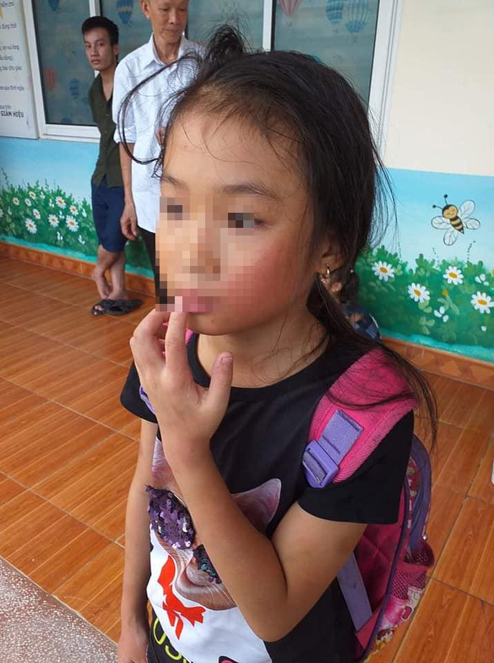 Khẩn trương xác minh thông tin cô giáo bạo hành học sinh ở Quảng Ninh - Hình 1