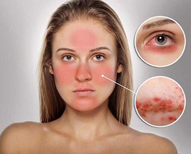 Cách phục hồi da bị mòn và lộ mao mạch do dùng kem trộn chứa corticoid - Hình 1