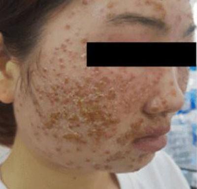 Dùng một loại bột rửa mặt được quảng cáo online, cô gái 22 tuổi khổ sở vì da mặt sần sùi, ngứa rát, đầy mụn nước - Hình 1