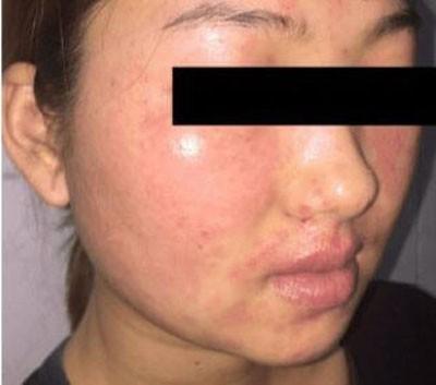 Dùng một loại bột rửa mặt được quảng cáo online, cô gái 22 tuổi khổ sở vì da mặt sần sùi, ngứa rát, đầy mụn nước - Hình 2