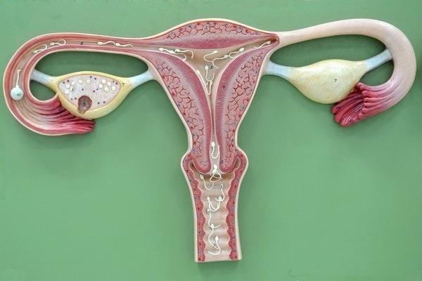 Nguyên nhân, triệu chứng và phương pháp điều trị viêm nội mạc tử cung mạn tính - Hình 2
