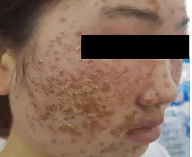 Nhập viện vì làm đẹp da bằng loại bột quảng cáo trên mạng - Hình 1