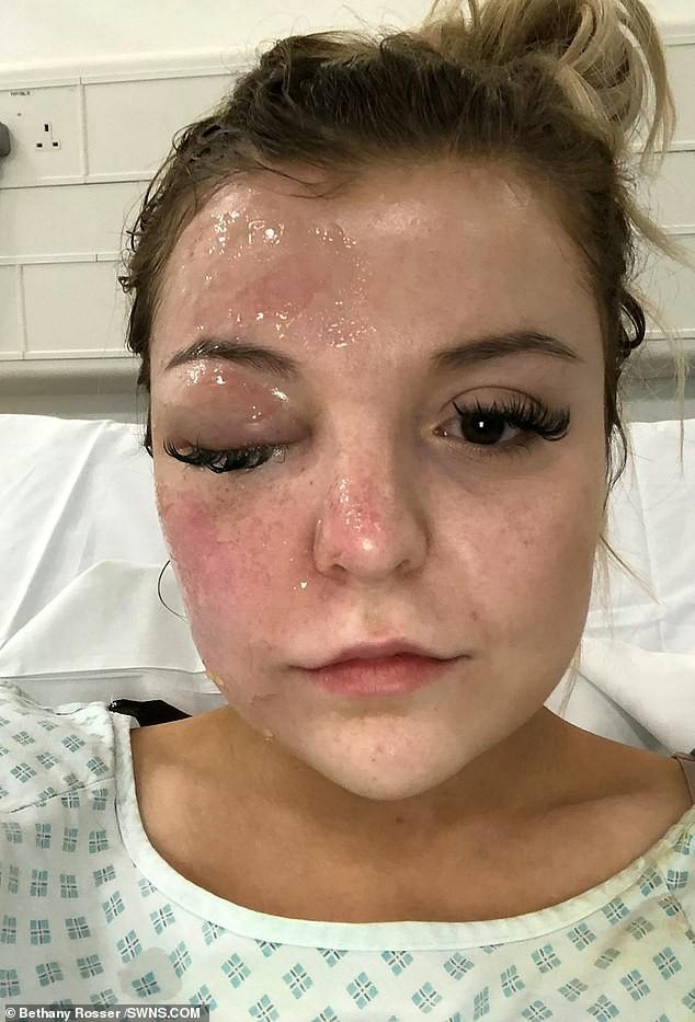 Tai nạn không ngờ: Luộc trứng đúng theo chỉ dẫn tìm kiếm trên mạng, trong giây lát cô gái 22 tuổi bị mù luôn một bên mắt - Hình 4