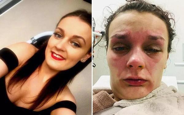 Tai nạn không ngờ: Luộc trứng đúng theo chỉ dẫn tìm kiếm trên mạng, trong giây lát cô gái 22 tuổi bị mù luôn một bên mắt - Hình 6