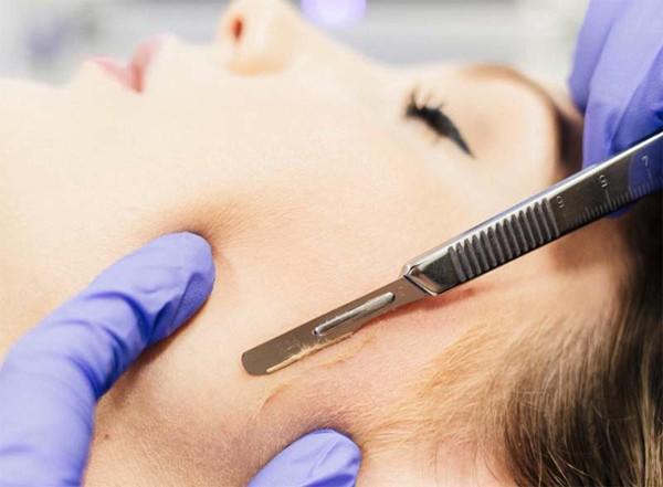 Phụ nữ nên hay không nên cạo lông mặt? Câu trả lời của các chuyên gia da liễu sẽ khiến bạn không ngờ - Hình 3