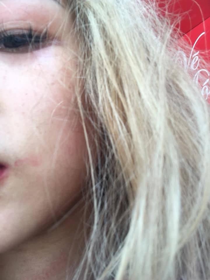 Cô gái bị đánh hội đồng vì mặc váy đụng hàng với chủ quán - Hình 7
