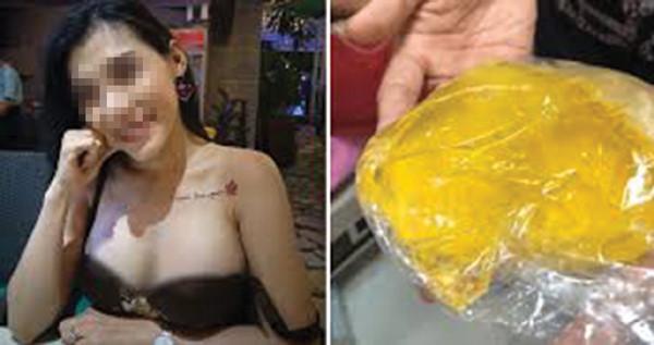 Những chuyện bi hài mang tên túi ngực silicone - Hình 1