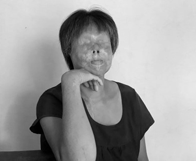 Nỗi đau axít: Cô gái 26 tuổi và ca axít của nữ sinh viên ghen tuông - Hình 1