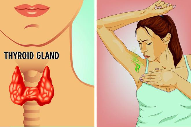 Mùi cơ thể gây ám ảnh nhưng ít ai biết nguyên nhân có thể xuất phát từ những vấn đề sau - Hình 3