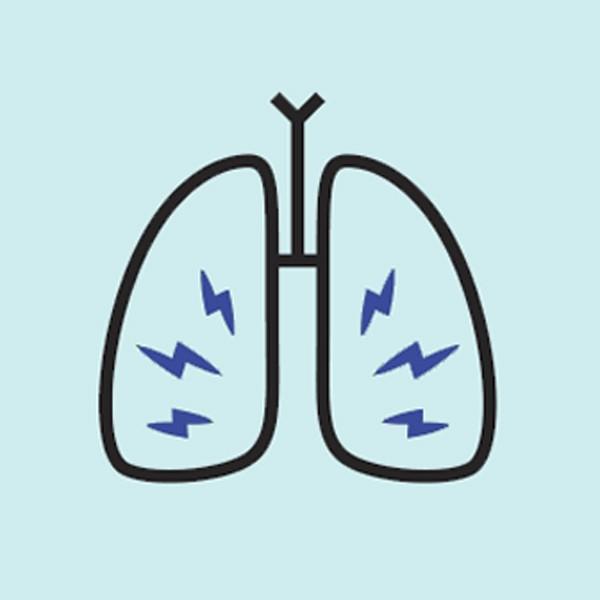 9 dấu hiệu của bệnh ung thư phổi bạn cần lưu ý - Hình 2