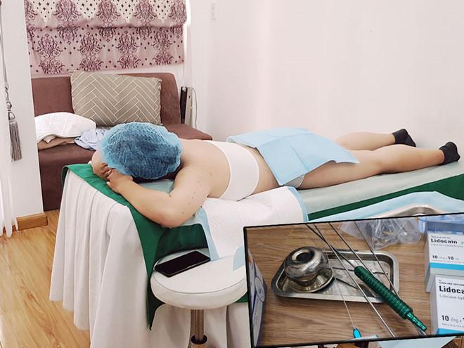 Khuyến cáo về các nguy cơ khi hút mỡ bụng - Hình 1