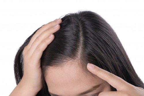 Mua khế về ép lấy nước gội đầu, sau 1 tuần bao nhiêu gàu cũng biến mất, tóc hết rụng - Hình 7