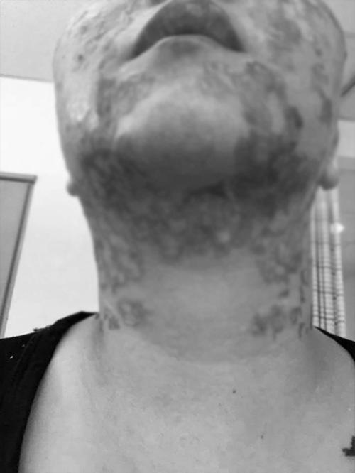 Người phụ nữ bị bỏng rộp cả khuôn mặt khi thực hiện công nghệ trẻ hóa căng da - Hình 6