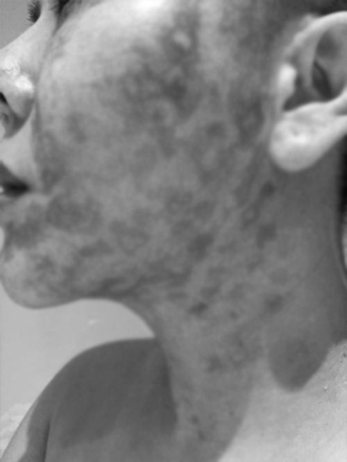 Người phụ nữ bị bỏng rộp cả khuôn mặt khi thực hiện công nghệ trẻ hóa căng da - Hình 9