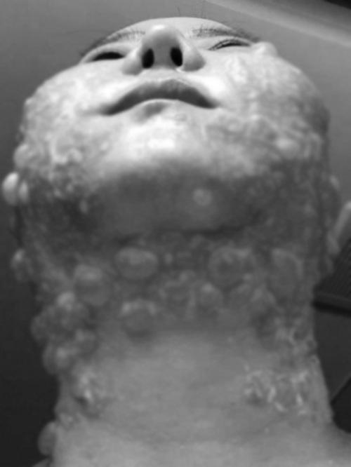 Người phụ nữ bị bỏng rộp cả khuôn mặt khi thực hiện công nghệ trẻ hóa căng da - Hình 5